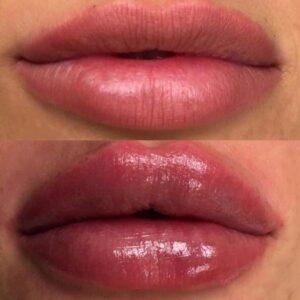 california-lips