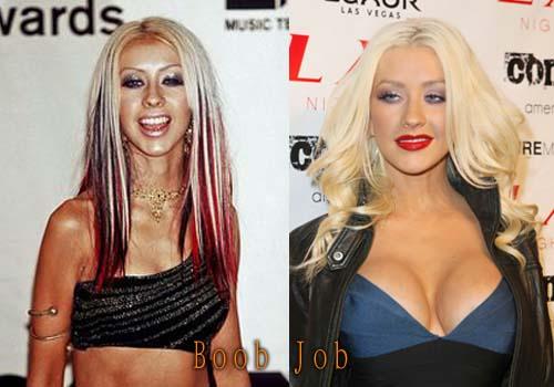 Christina-Aguilera-Boob-Job