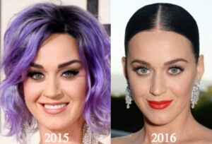 Katy Perry Nose Job katy perry plastic surgery before and after photos latest Katty Kay Plastic Surgery, Katy Perry Nose Job Katy Perry Cosmetic Ads, - Bad Plastic Surgery