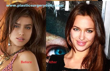 irina-shayk-plastic-surgery